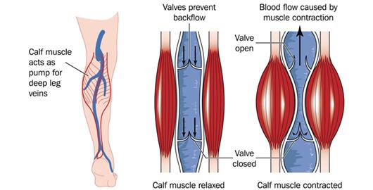 Venous Disease Treatment