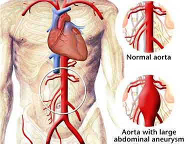 Surgery for Aortic Aneurysms