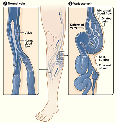 surgery-for-varicose-veins