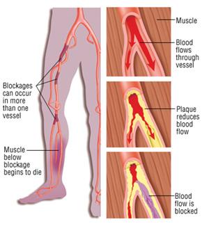 Peripheral Artery Disease -vascular surgeon